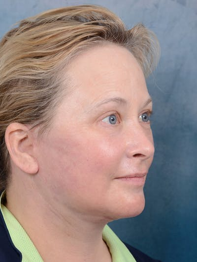 Laser Skin Resurfacing Gallery - Patient 18908953 - Image 8