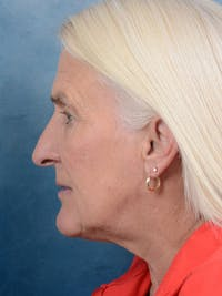 Rhinoplasty Gallery - Patient 19056131 - Image 1