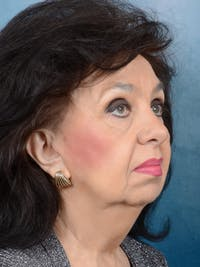 Facelift Gallery - Patient 20542929 - Image 1