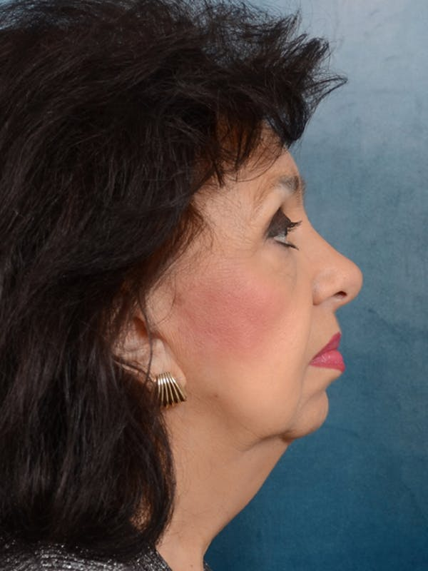Facelift Gallery - Patient 20542929 - Image 5
