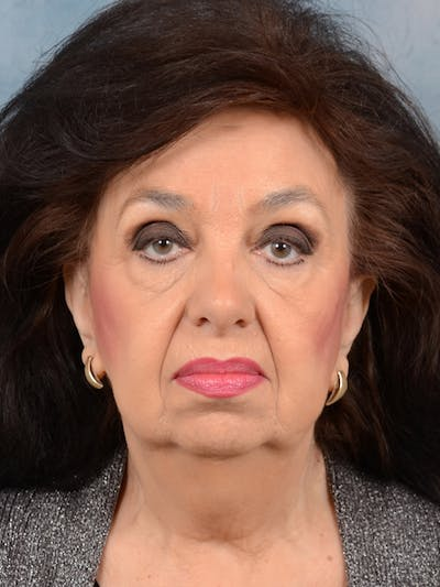 Chin Augmentation Gallery - Patient 20542952 - Image 1