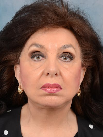 Chin Augmentation Gallery - Patient 20542952 - Image 2