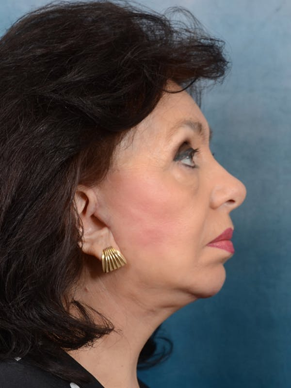 Chin Augmentation Gallery - Patient 20542952 - Image 6