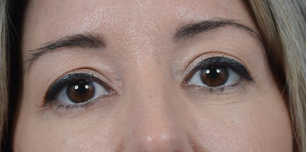 Eyelid Lift Gallery - Patient 24079262 - Image 1