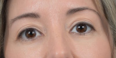 Eyelid Lift Gallery - Patient 24079262 - Image 2