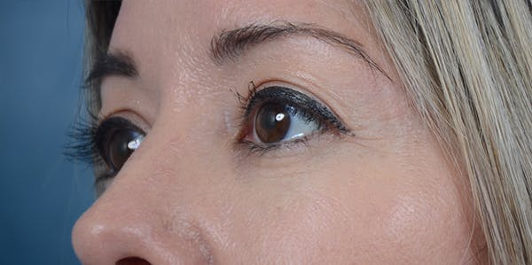 Eyelid Lift Gallery - Patient 24079262 - Image 3