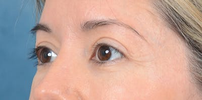 Eyelid Lift Gallery - Patient 24079262 - Image 4