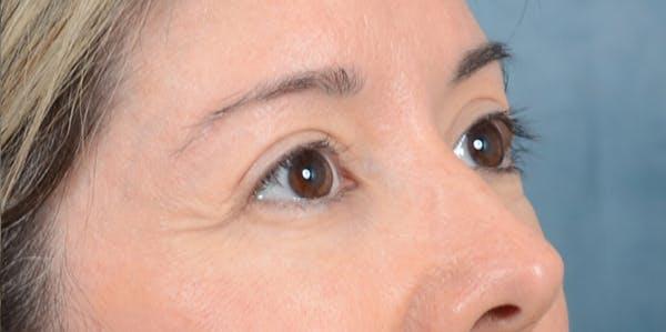 Eyelid Lift Gallery - Patient 24079262 - Image 6