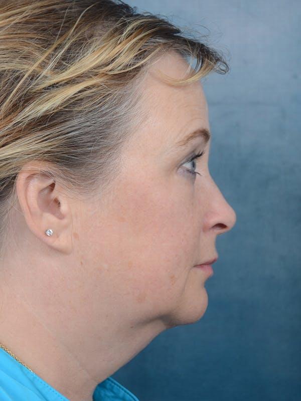 Facelift Gallery - Patient 18908946 - Image 9