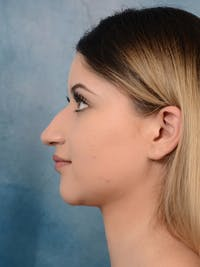 Rhinoplasty Gallery - Patient 24814014 - Image 1