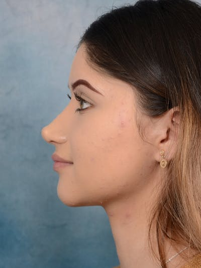Rhinoplasty Gallery - Patient 24814014 - Image 2