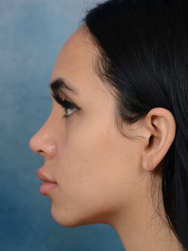 Rhinoplasty Gallery - Patient 16862101 - Image 2