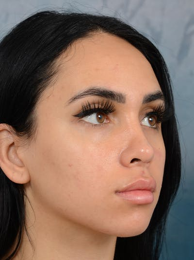 Rhinoplasty Gallery - Patient 16862101 - Image 8
