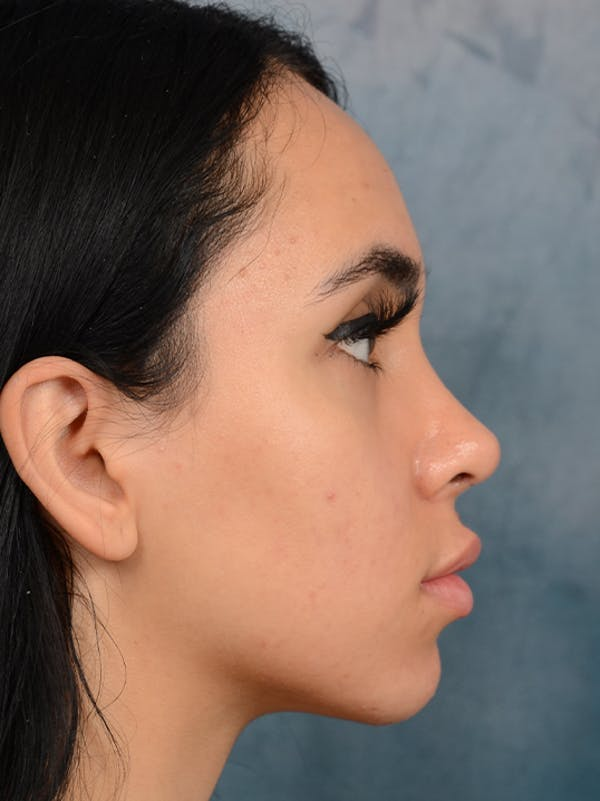 Rhinoplasty Gallery - Patient 16862101 - Image 10