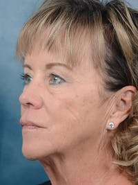 Facelift Gallery - Patient 25623505 - Image 1