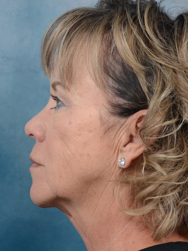 Facelift Gallery - Patient 25623505 - Image 5