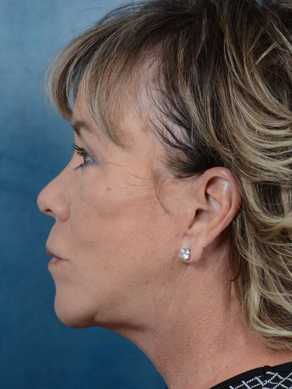 Facelift Gallery - Patient 25623505 - Image 6