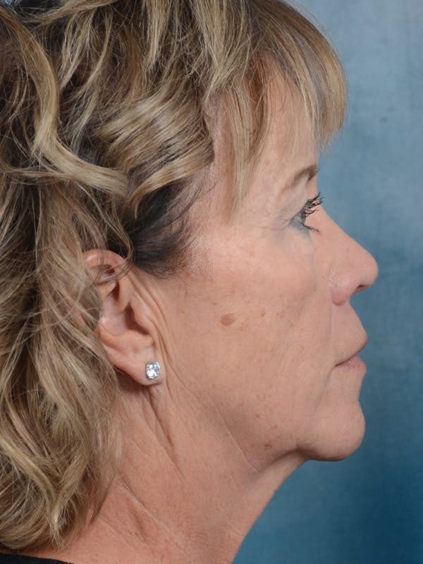 Facelift Gallery - Patient 25623505 - Image 9