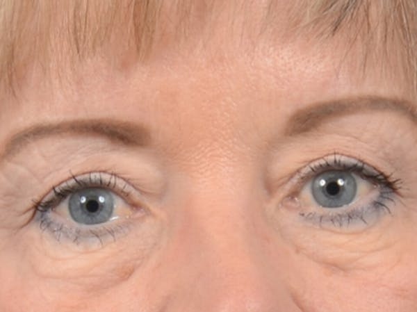 Eyelid Lift Gallery - Patient 25623537 - Image 1