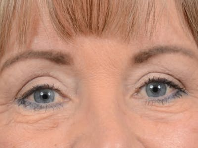 Eyelid Lift Gallery - Patient 25623537 - Image 2