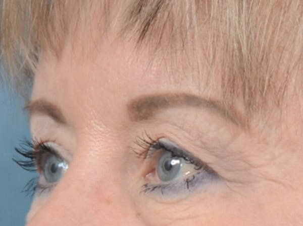Eyelid Lift Gallery - Patient 25623537 - Image 3