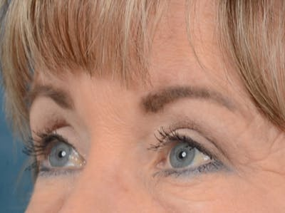 Eyelid Lift Gallery - Patient 25623537 - Image 4