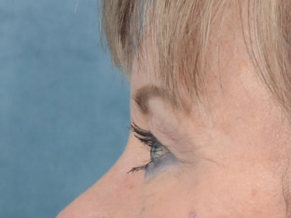 Eyelid Lift Gallery - Patient 25623537 - Image 5
