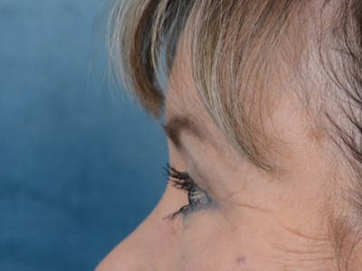 Eyelid Lift Gallery - Patient 25623537 - Image 6