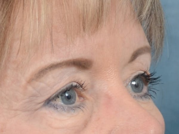 Eyelid Lift Gallery - Patient 25623537 - Image 7