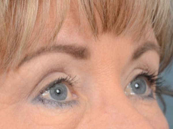 Eyelid Lift Gallery - Patient 25623537 - Image 8