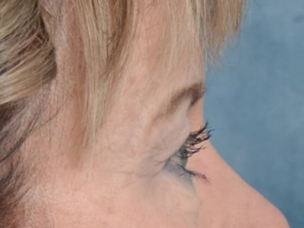 Eyelid Lift Gallery - Patient 25623537 - Image 9