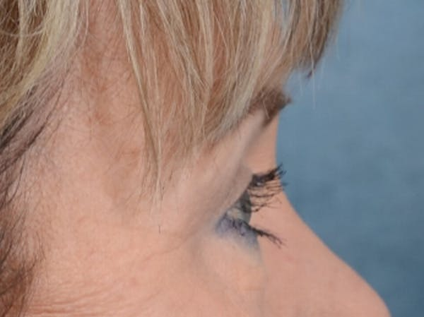 Eyelid Lift Gallery - Patient 25623537 - Image 10