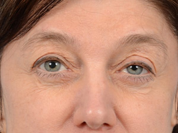 Eyelid Lift Gallery - Patient 14605191 - Image 1