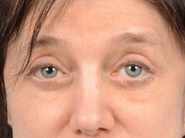 Eyelid Lift Gallery - Patient 14605191 - Image 2