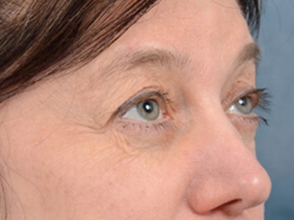 Eyelid Lift Gallery - Patient 14605191 - Image 7