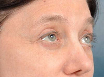 Eyelid Lift Gallery - Patient 14605191 - Image 8