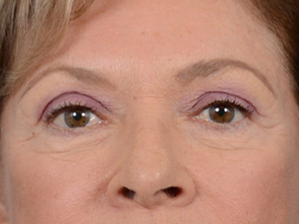 Eyelid Lift Gallery - Patient 15930444 - Image 1