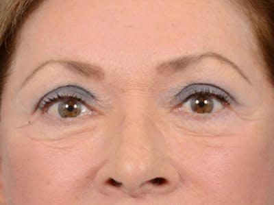 Eyelid Lift Gallery - Patient 15930444 - Image 2
