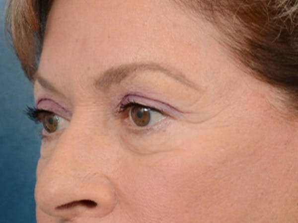 Eyelid Lift Gallery - Patient 15930444 - Image 3