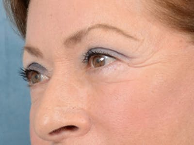 Eyelid Lift Gallery - Patient 15930444 - Image 4