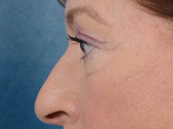 Eyelid Lift Gallery - Patient 15930444 - Image 5
