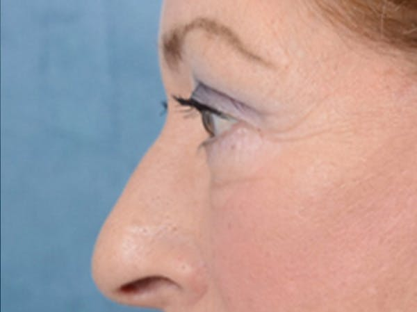 Eyelid Lift Gallery - Patient 15930444 - Image 6