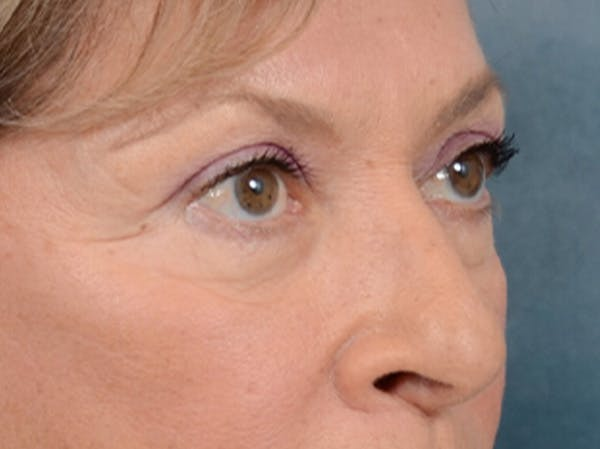 Eyelid Lift Gallery - Patient 15930444 - Image 7