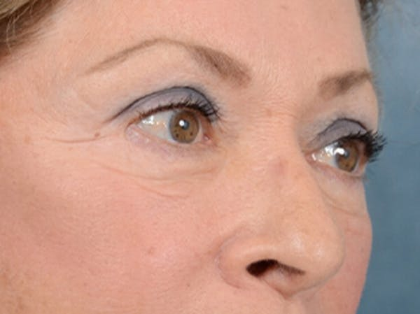 Eyelid Lift Gallery - Patient 15930444 - Image 8