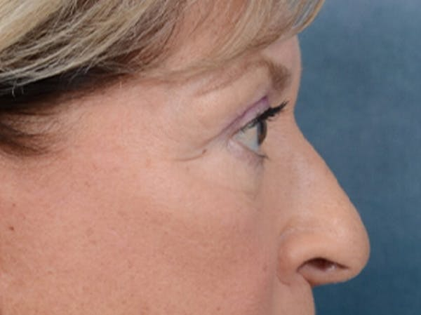 Eyelid Lift Gallery - Patient 15930444 - Image 9