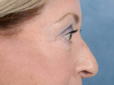 Eyelid Lift Gallery - Patient 15930444 - Image 10