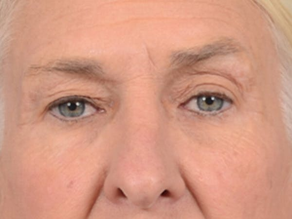 Eyelid Lift Gallery - Patient 19056130 - Image 1