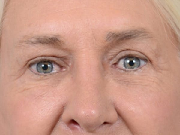 Eyelid Lift Gallery - Patient 19056130 - Image 2