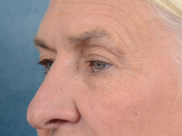 Eyelid Lift Gallery - Patient 19056130 - Image 3