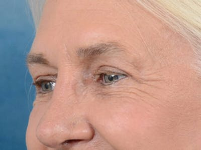 Eyelid Lift Gallery - Patient 19056130 - Image 4